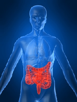 Chronic Gut Inflammation Could Spark Colon Cancer