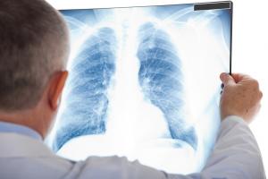 Asbestosis FAQs | www.serrapeptase.info