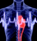 Coronary or Ischaemic Heart Disease Causes