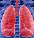 Pulmonary Embolism Health Plan