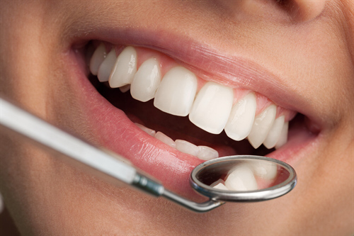 Periodontal Disease Health Plan