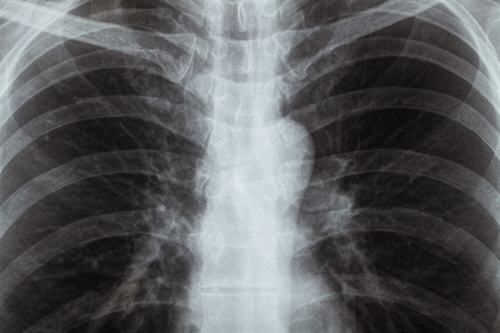 Asbestosis and Other Dust Conditions Health Plan