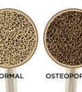 what is osteoporosis and what causes it