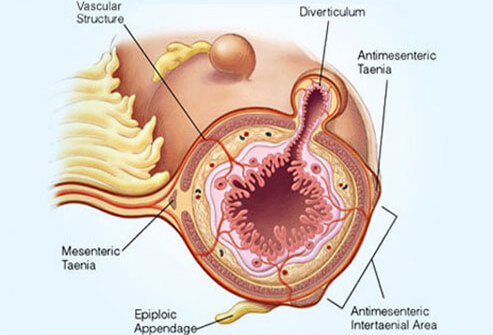 What is Diverticulitis and What Causes It?