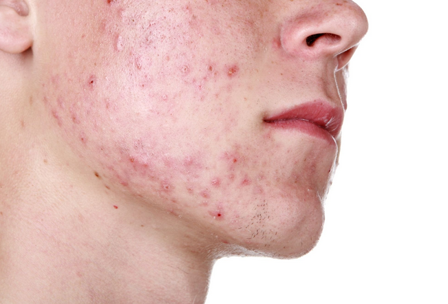 what cause acne