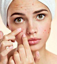 Acne, Rosacea, Vulgaris, and Cystic Health Plan